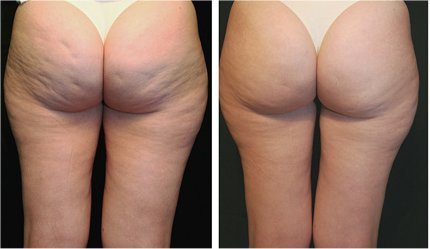 Derma rolling therapy against cellulite