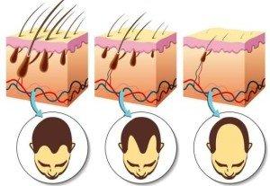 scalp derma rolling