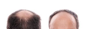 dermarolling for fighting  hair loss