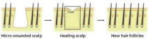 scalp needling