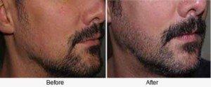 Men Issues: Can Dermarolling Stimulate Beard Growth? - Derma Roller Shop