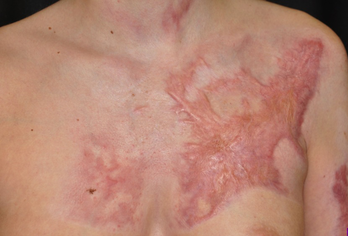 Burn Scar Problems How To Deal With Deep Scars And What
