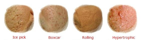 Acne-scars-types