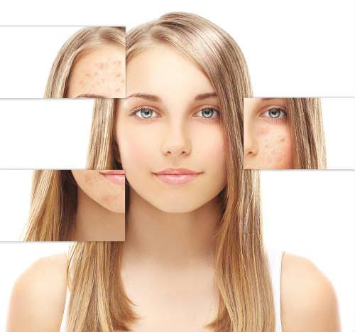 H3 post acne scars