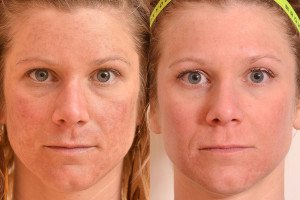 Melasma-Laser-Treatment-resized-