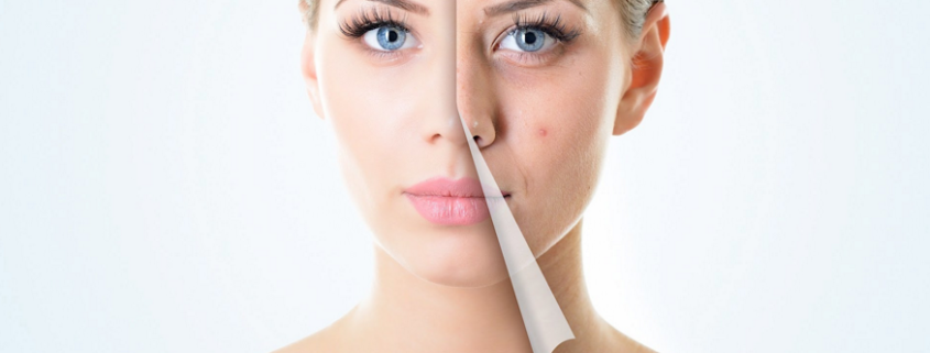acne treatment with dermarolling