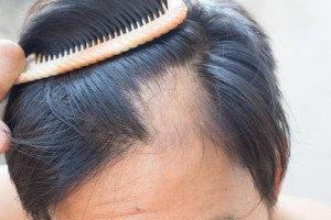 alopecia 2