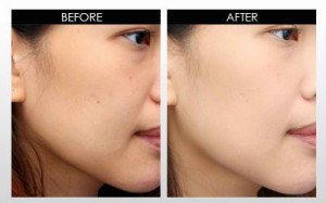 asian skin hyperpigmentation