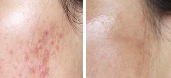 Derma Roller Before And After Picture for Acne Scars
