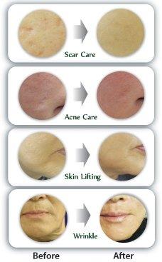 derma roller before-after