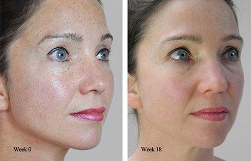 derma-roller-before-after