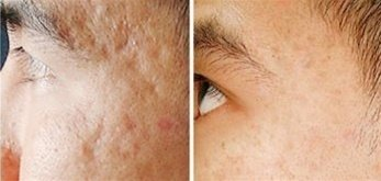 Dermaroller Before And After Picture Acne Scars