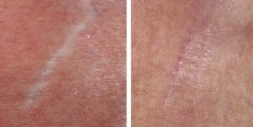 Derma Roller Before And After Picture For Scar