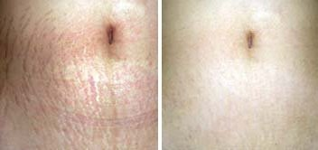 Derma Roller Before And After Pictures For Stretch Marks