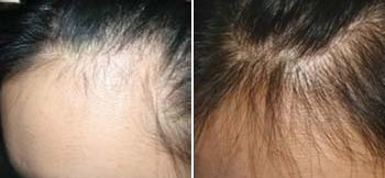 Derma Roller Before And After Pictures Hair