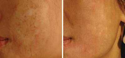 Derma Roller Before And After Picture Scars