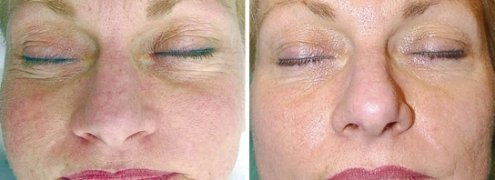 Image result for derma roller before and after