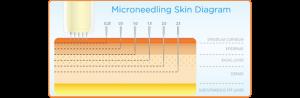 Derma Stamping