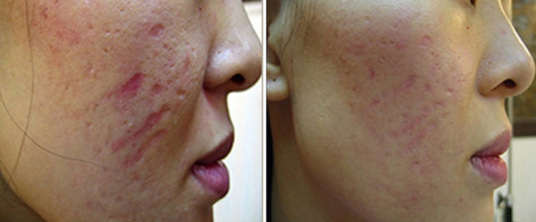 Derma Roller Before And After Picture Acne Scars