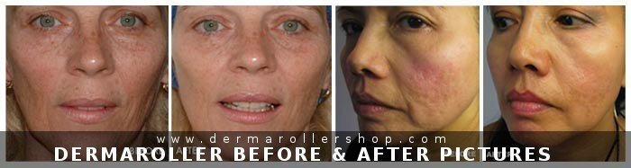 derma roller before after