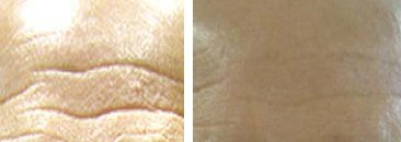 Derma Roller Before And After Pictures For Wrinkles