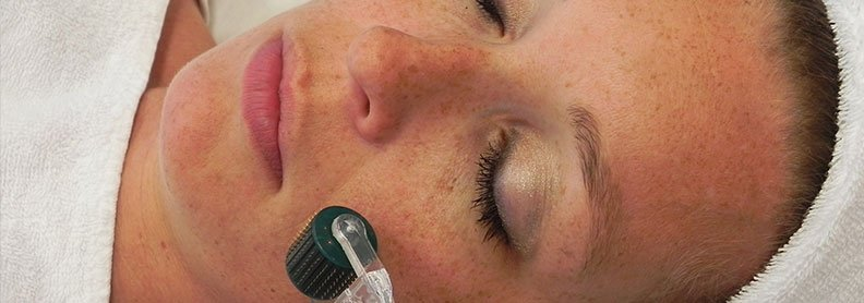 Micro Needling Side Effects - What to Expect After Microneedling