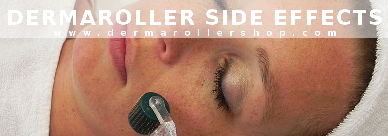Worried about derma roller side effects? Find out what to expect after derma rolling and if there are any derma roller side effects you should know.