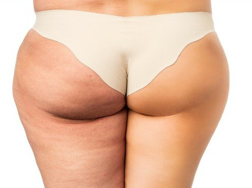 dermarolling-effects-on-cellulite