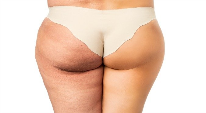 Dermarolling For Anti Cellulite Treatment Is This A New Way To Get Your Bikini Body Without Work Out