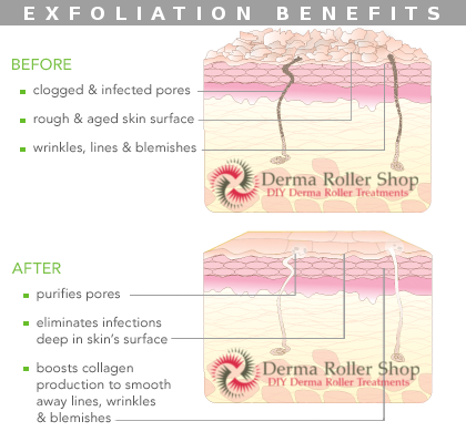 Regular exfoliation benefits