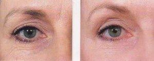 eyes wrinkles
