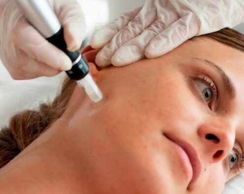 Dermapen for wrinkles