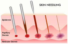 stretch marks 6 skin needling