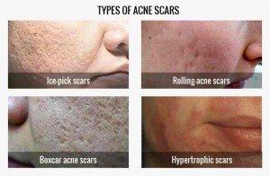 types-acne-1-4
