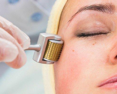 types-acne-3-4